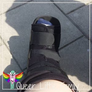 A picture of my leg in a black boot designed to limit movement and let my ankle heal.
