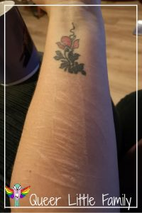 A picture of the scars on my left arm, below my poppy tattoo.